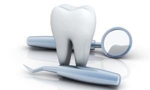 虫歯の治療のイメージ