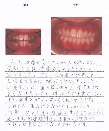 「非抜歯矯正」で歯並びを綺麗にしたSさんのご感想